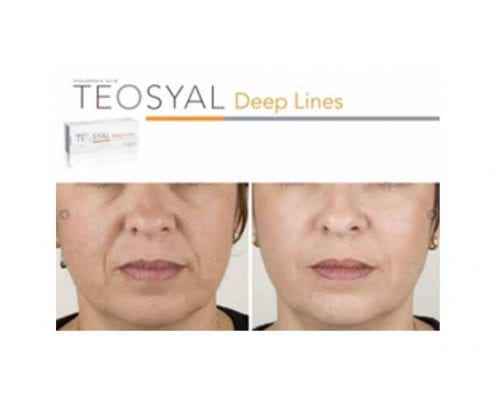 Dermal Fillers - Teosyal